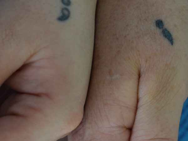 two people's hands side by side, each with a semi-colon tattoo